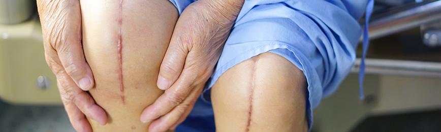 Коррекция рубцов после операции