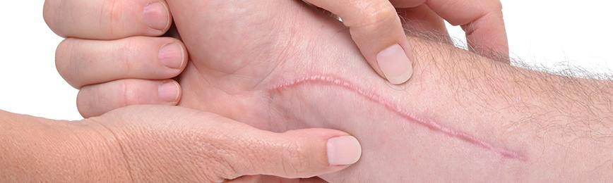 Методы лечения рубцов