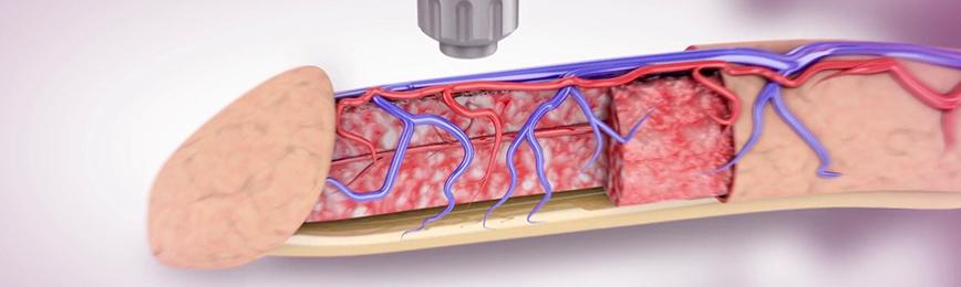 Применение Ферменкола на ранних стадиях лечения болезни Пейрони