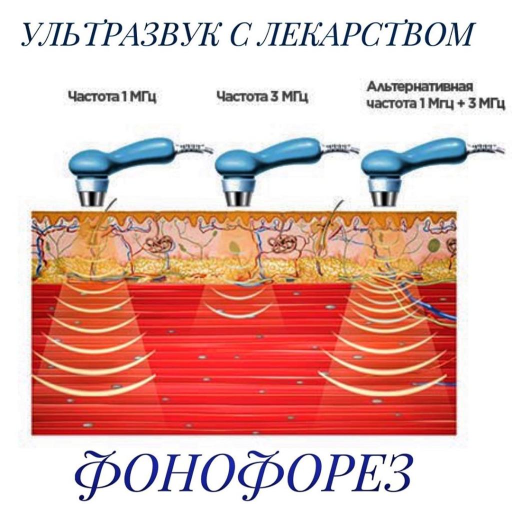 Что такое фонофорез? Особенности процедуры