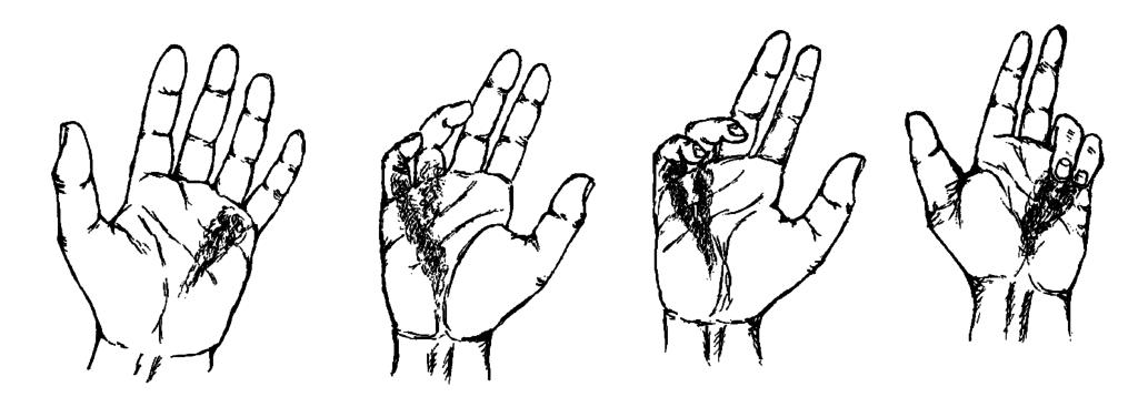 Виды контрактуры Дюпюитрена, как диагностировать стадию