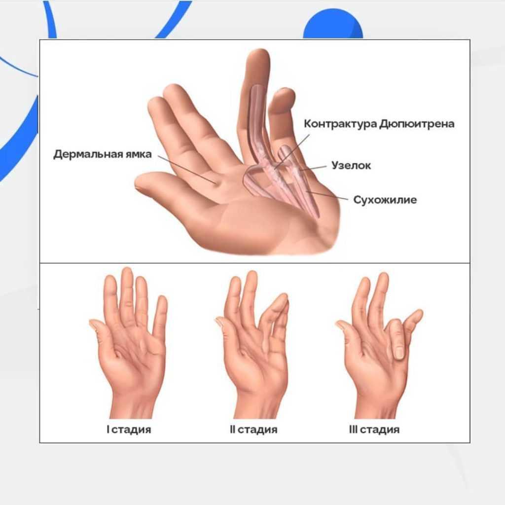 ладонный фасциальный фиброматоз Дюпюитрена