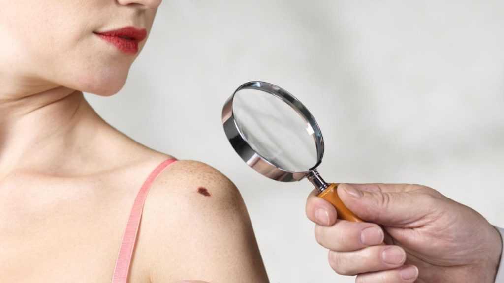 какими бывают шрамы, способы лечения и профилактика