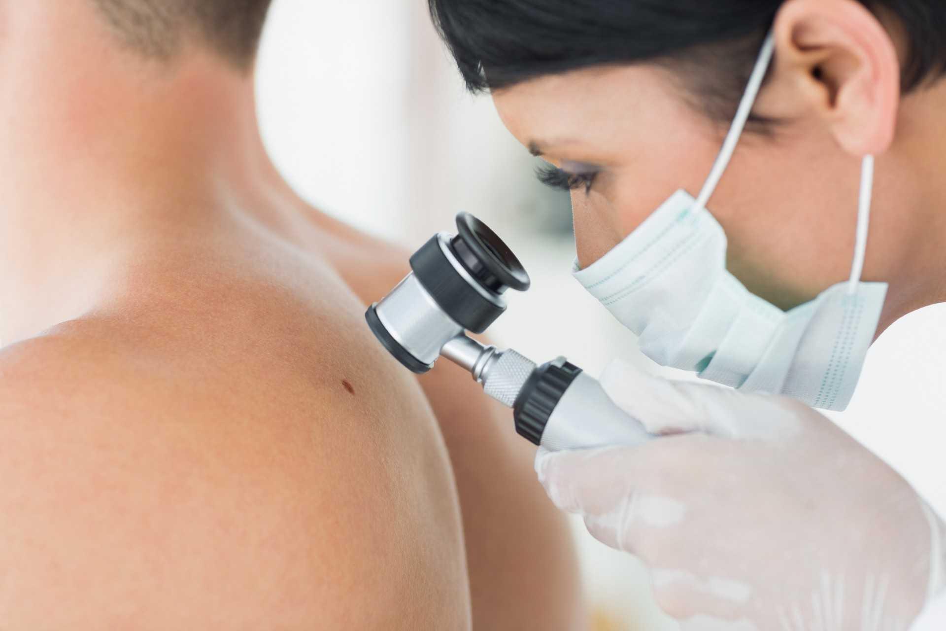 профилактика и лечение шрамов после удаления родинки