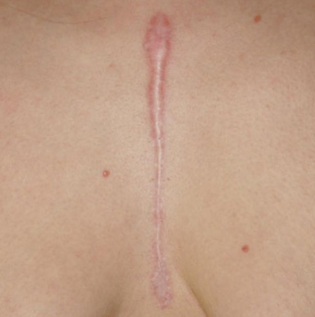 гипертрофические шрамы