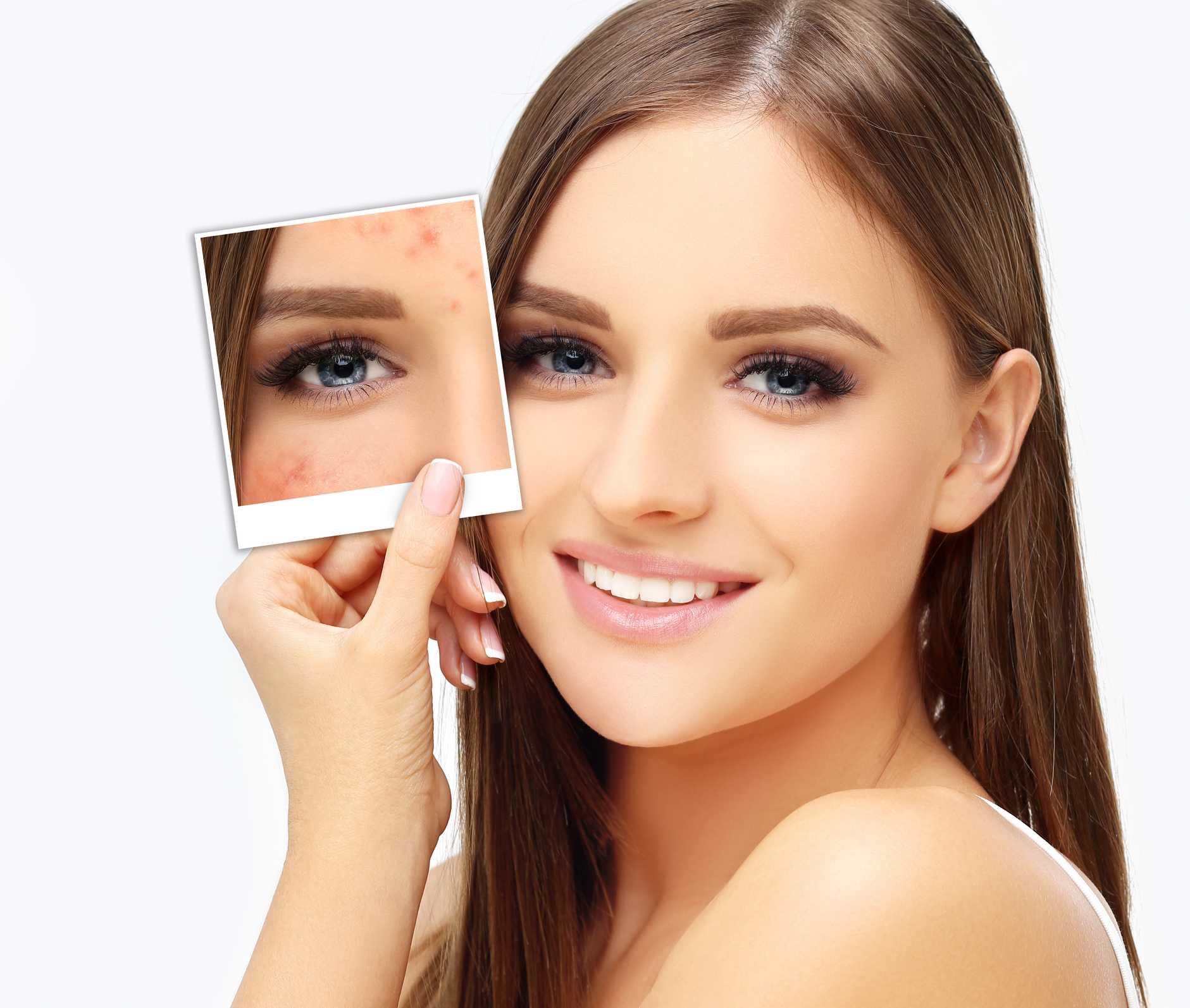 Здоровая кожа после шрама