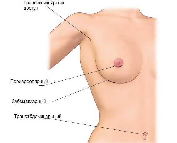 Способы проведения маммопластики