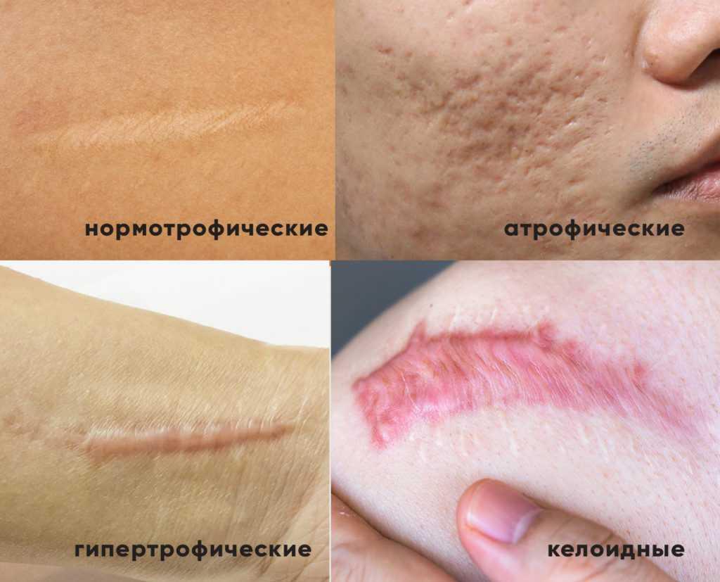 Какими бывают шрамы