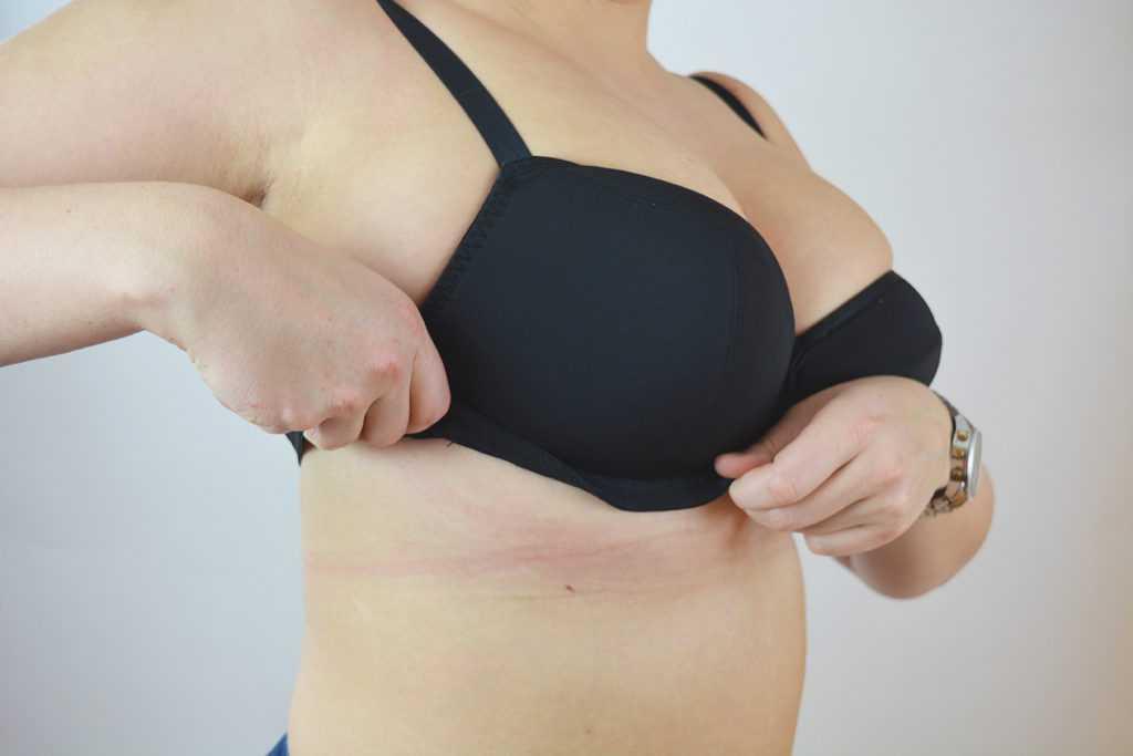 Виды шрамов после маммопластики