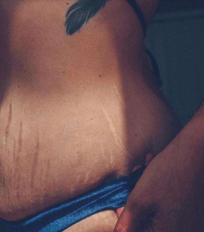 стрия после похудения