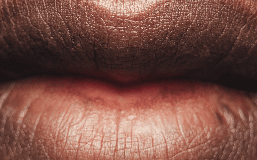 появился шрам на верхней губе