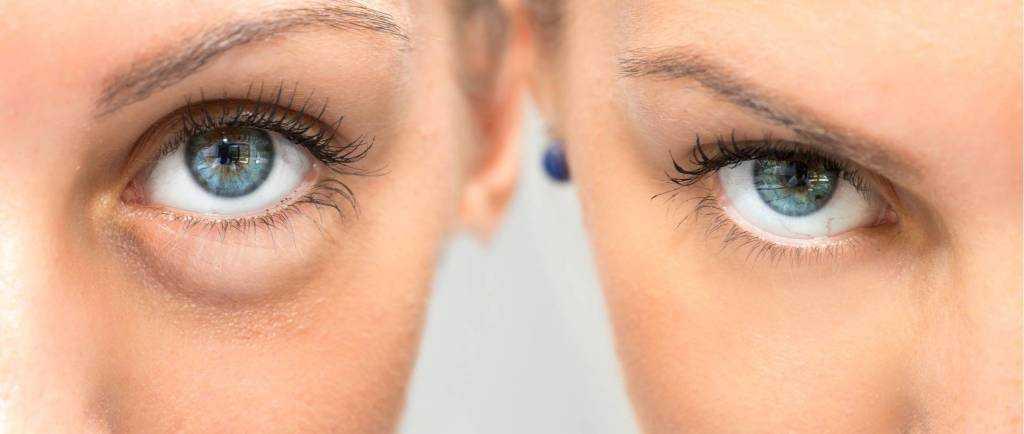 признаки тиндаля под глазами