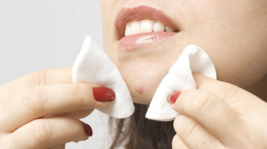 как убрать пятна постакне на лице