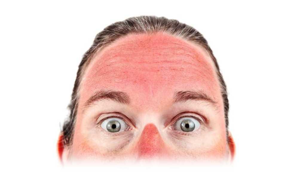 химический ожог лица после пилинга
