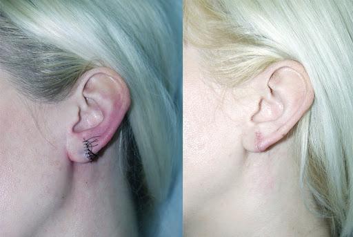 рубцы после проколов ушей